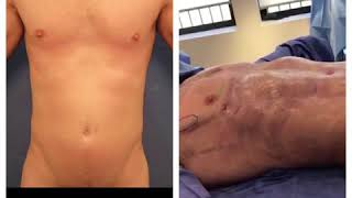 LOOK AT THIS! MALE HIGH DEFINITION LIPOSUCTION!