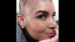 Sobre minha cabeça raspada (tratando minha alopecia)