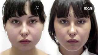 Индивидуальные силиконовые имплантаты(VIP Studio. Virtual Plastic Surgery. http://guryanov-plasticsurgeon.ru/, 2015-09-03T14:01:50.000Z)