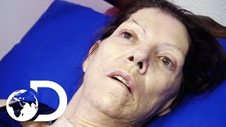 Miracle Drug Wakes Up Woman In A Coma After 2 Years | My Shocking Story YouTube Videos