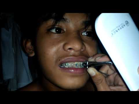 How To Put Braces In Your Teeth at Home