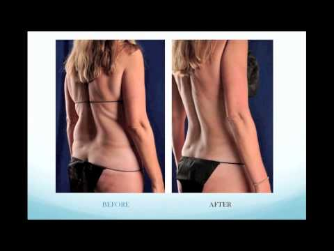 Renewal Body Contouring Experience - Part 5 The Procedures and Results