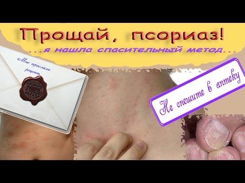 Как вылечить псориаз навсегда Причины псориаза и его лечение