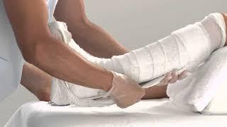 Что нужно есть после перелома ноги, руки, бедра, большой берцовой кости?