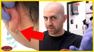 Be Careful What You Clean Your Piercings With!!