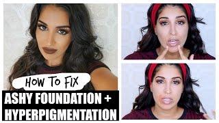 Fix Ashy Foundation Cover Hyper Pigmentation Not Cakey Youtube