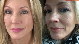 My Experience With Botox & Filler (Juvederm)