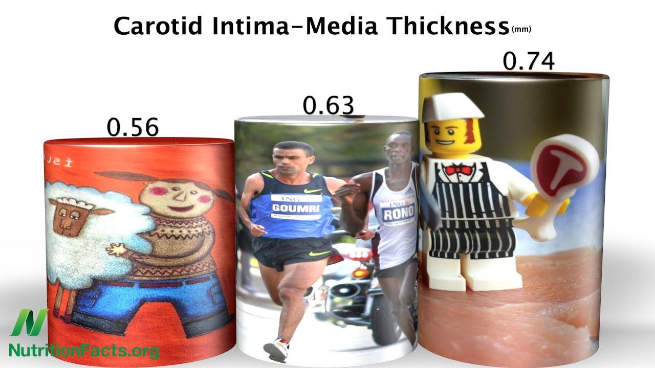 Arteries of Vegans vs. Runners
