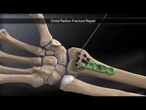 fractură de mână cu tratament de deplasare dureri articulare și mâncărimi