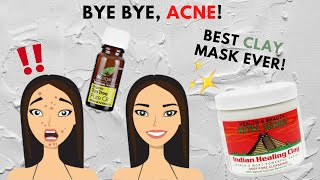 HOW TO GET RID OF ACNE & ACNE SCARS!! [ Aztec Secret Indian Healing Clay ]