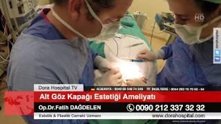 Alt Göz Kapağı Estetiği Ameliyatı Op.Dr.Fatih Dağdelen