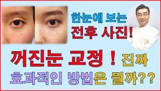 꺼진눈 교정에 가장 효과적인 방법은? 눈지방이식? 아니…