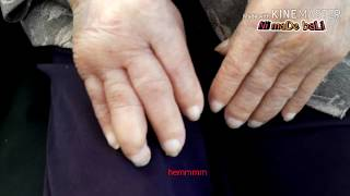 Jempol Tangan Sakit / Ibu Jari Sakit – FISIOTERAPI | Ibu jari sakit ditekuk – Jempol kaku nyeri.