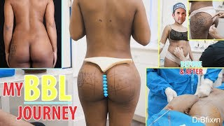 Before And After BBL Surgery-Behind the Scenes!