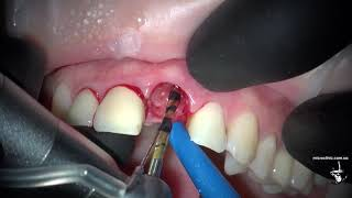 Как удаляют и имплантируют зубы в один визит.