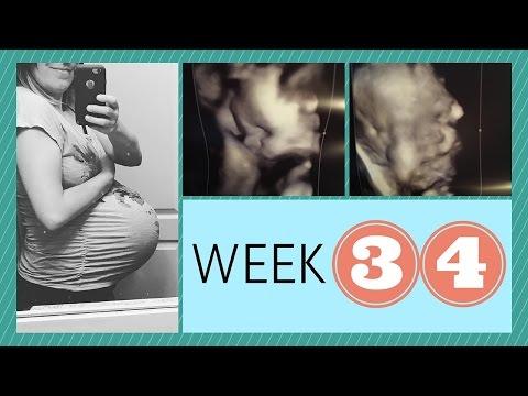 IVF PREGNANCY #2: WEEK 34 + IUGR COMPLICATIONS???
