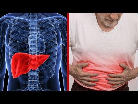 10 Señales O Síntomas Que Te Avisan Que Hay Algo Mal Con Tu Hígado