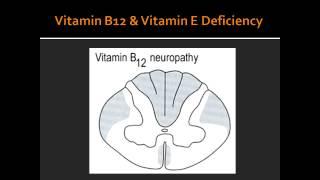 Spial Cord Lesion - Syringomyelia, Vitamin B12 Deficiency & Vitamin E Dificiency