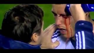 Криштиано Роналдо избили на поле и потом он отомстил забив гол