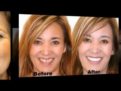 dental-implants-before-and-after1-kansas-call-free-877-292-6308