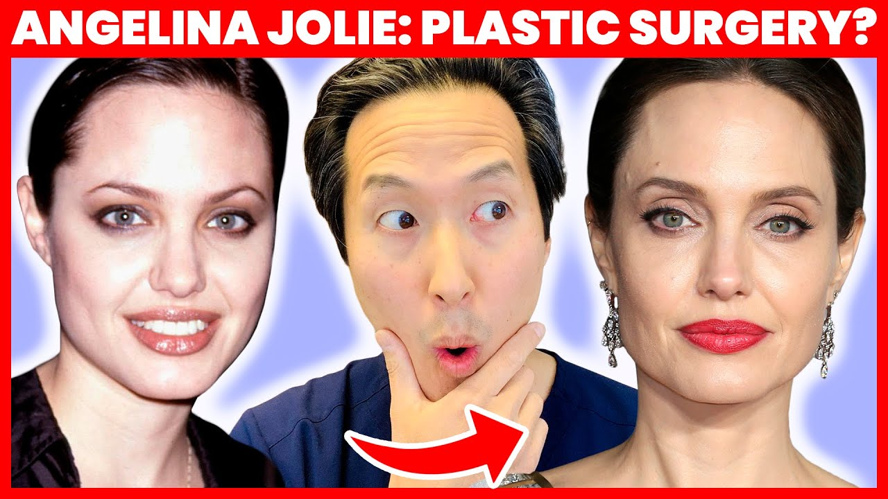 Doctor Reacts To Angelina Jolie S Plastic Surgery How Does She Look So Good Dr Anthony Youn Youtube