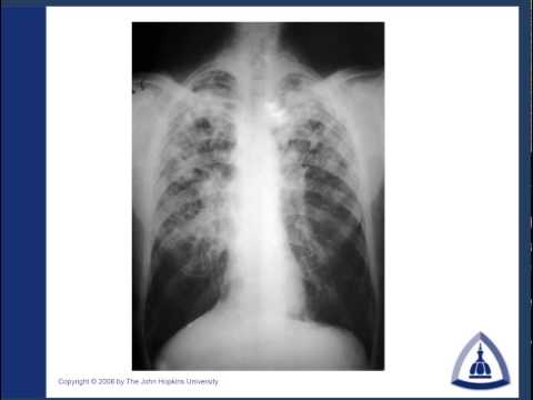 Chest X-Ray Interptretation by Patterns & Common Signs - Par