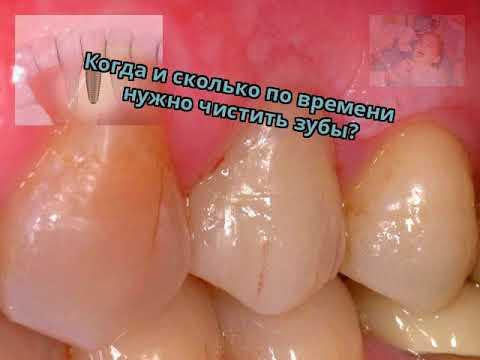 Когда и сколько по времени нужно чистить зубы?