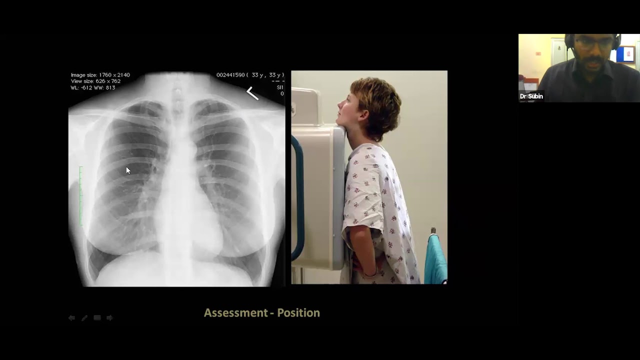 Interpretation of Chest X-rays -Dr Subin Kuruvilla