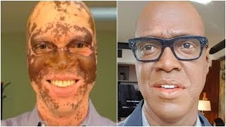 TV Reporter Paints His Skin Every Day To Save His Career