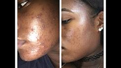 Doxycycline: Journey to Clear Skin (GRAPHIC PHOTOS)// LIV KNIGHTLY