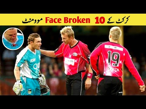 Top 10 Face Broken Bouncers in Cricket
