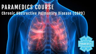Paramedics Course - Chronic Obstructive Pulmonary Disease (COPD) - Australian Paramedical College