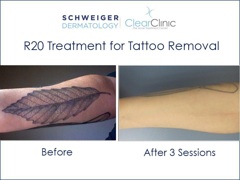 r20 laser removal technique
