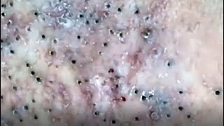 Blackheads removal from face - blackhead removal - acne 2019