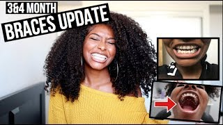 Video 3&4 Month Braces Update + Taking Out My Palate Expander!!! download MP3, 3GP, MP4, WEBM, AVI, FLV Maret 2018