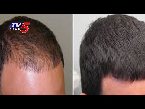 Latest Hair ReGrowth Treatments & Hair Loss Solutions |  Vibes | TV5 News