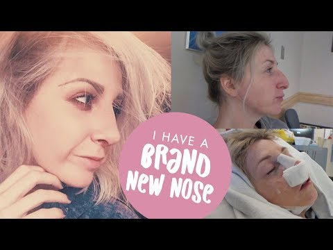 NOSE JOB VLOG - From Surgery to Recovery (Rhinoplasty / Septorhinoplasty  Journey)