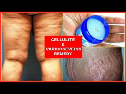 HOW TO REDUCE CELLULITE IN 2 WEEKS NATURALLY + VARICOSE VEINS  Khichi Beauty
