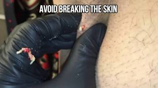 Pimple Popp B Head Removal Tool Kit – Tipmyshow