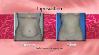 Who is the Best Candidate for Liposuction? Maryland Cosmetic Surgeon Answers. Thumbnail