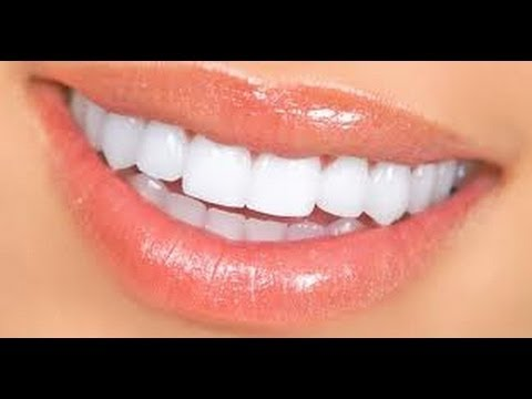 how to get white teeth without baking soda