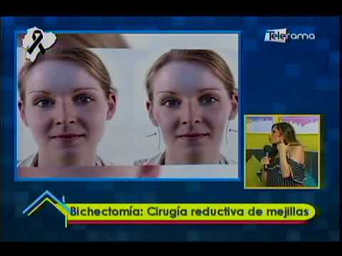 Bichectomía: Cirugía reductiva de mejillas