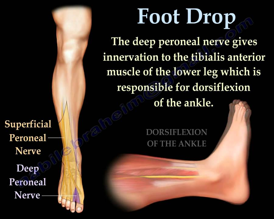 Foot Drop, Peroneal Nerve Injury - Everything You Need To Know - Dr ...