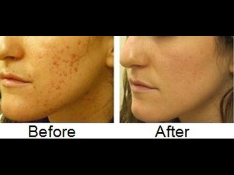 How To Get Rid Of Acne In One Week Naturally
