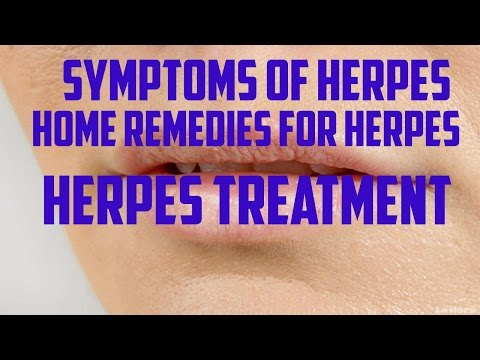 symptoms of herpes│ home remedies for herpes │ herpes treatment