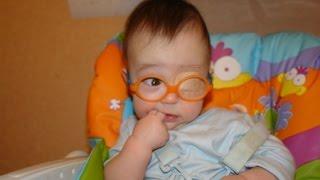 видео Амблиопия у детей: причины и способы лечения