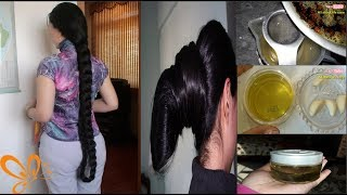 A Doctor Told Me The Hair Growth Secret | World Best Home Remedy For Long,Thick & Bald Head