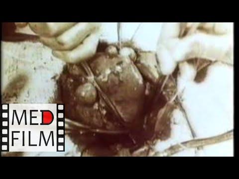 Миома матки. Операция ампутации матки без придатков (без звука) © hysteromyoma (soundless)