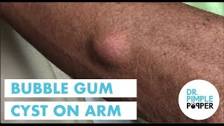 A Bubble Gum Cyst, Revisited with follow up TBT