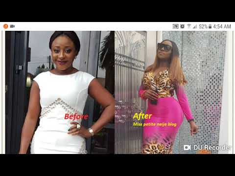NIGERIAN CELEBRITIES WHO HAVE DONE COSMETIC SURGERY